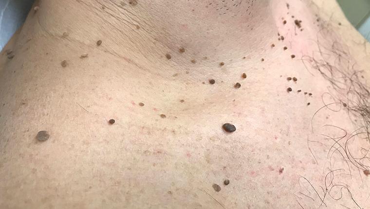 papillomas healing