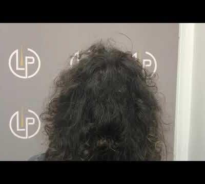 898 GRAFTS - 1669 HAIR