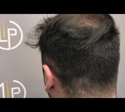 1626 GRAFTS - 4026 HAIR