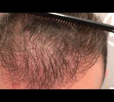 1457 GRAFTS - 3798 HAIR