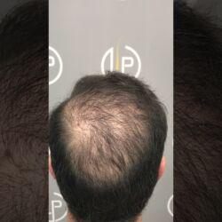 3900 GRAFTS - 7920 HAIR