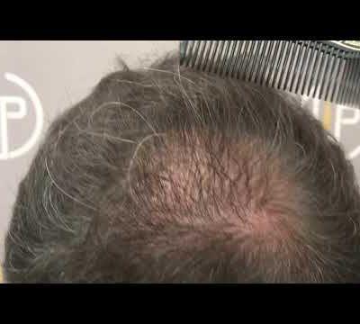 898 GRAFTS - 1951  HAIR