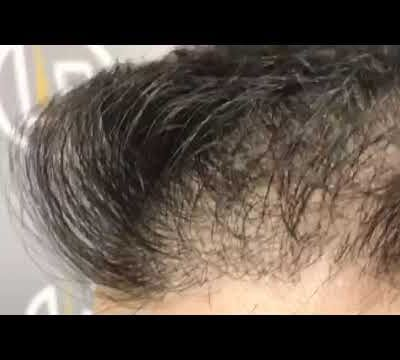 1483 GRAFTS - 3421 HAIR
