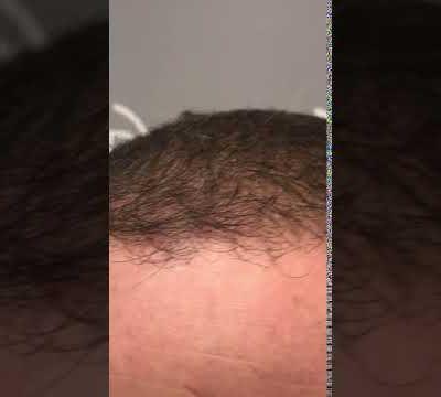 1707 GRAFTS - 3676 HAIR