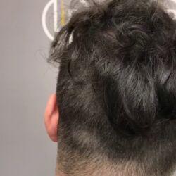 1806 GRAFTS - 4230 HAIR